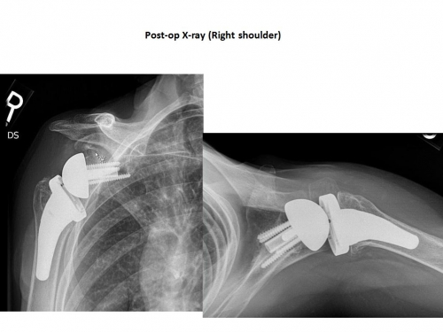 Reverse Total Shoulder Replacement Boston Shoulder Institute
