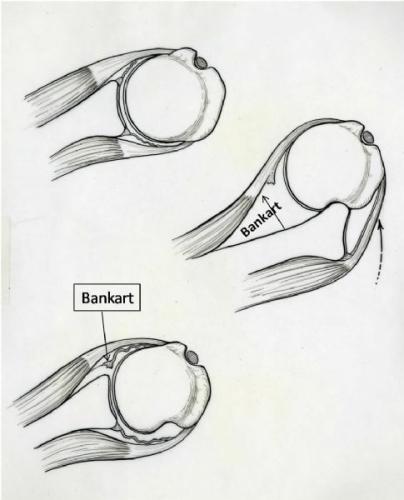 Bankart drawing