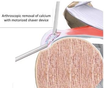 Calcific Tendinitis arthroremoval