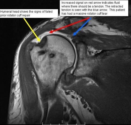 MRI rotator cuff tear