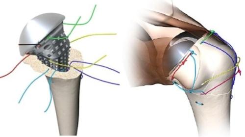 Sutures around prosthesis