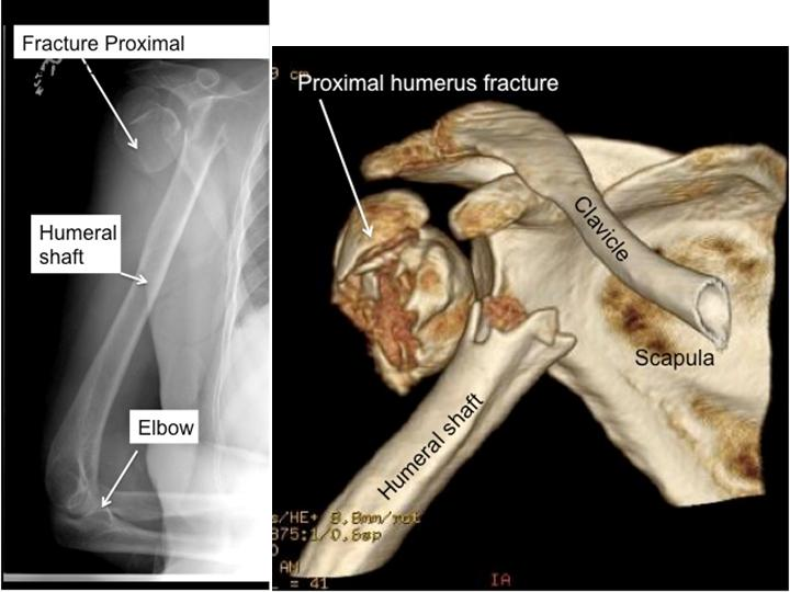 Boston Shoulder Institute – XR and CT fracture