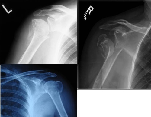 XR showing fracture