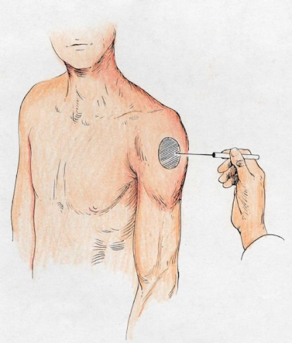 axillary nerve sensation