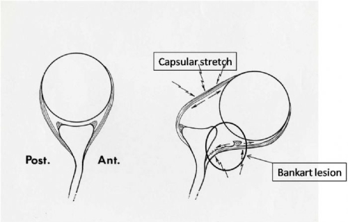 bankart lesion and capsular stretch