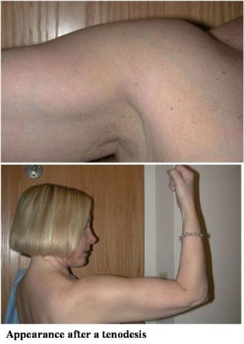 biceps20-web
