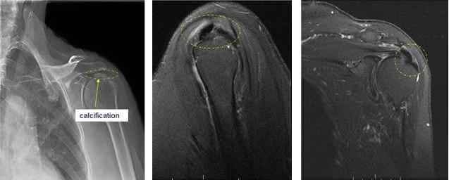 calcific tendinitis images 2