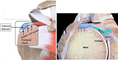 Calcific Tendonitis | Boston Shoulder Institute