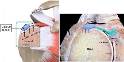 calcific tendinitis images