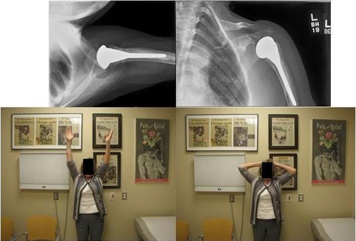 fracture hemi(1)
