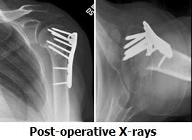 fracture post-op