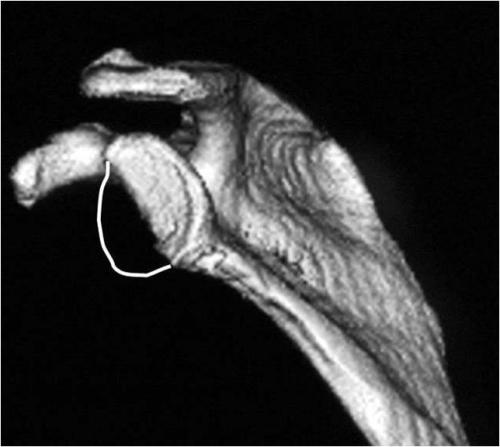 glenoid bone loss
