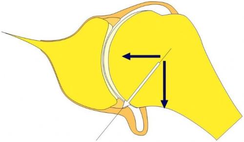 ligament labrum