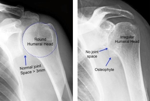 normal v arthritis 1(2)