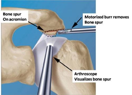scope-acromioplasty