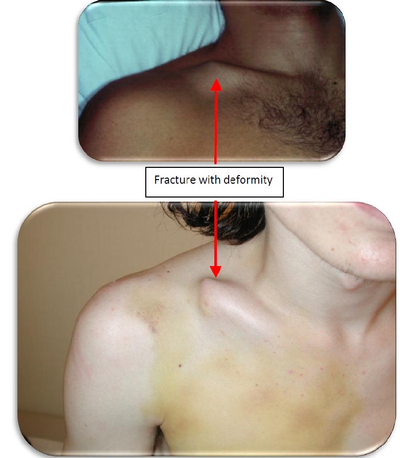 Collarbone