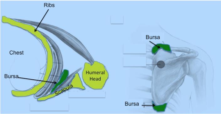 Scapulothoracic-Bursitis