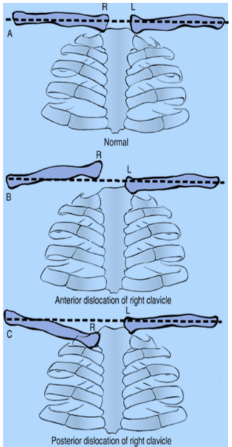 sternoclavicular-joint14