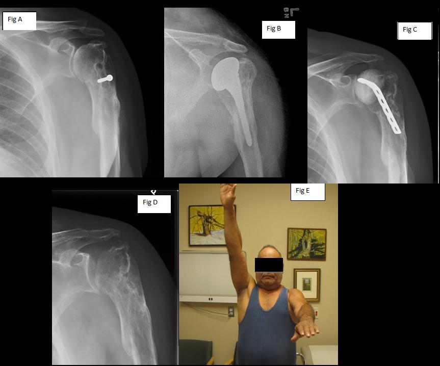 resection arthroplasty1