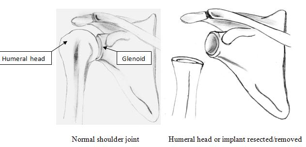 resection arthroplasty