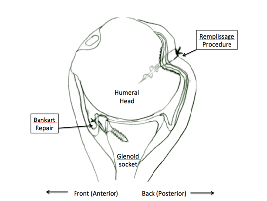 treatment of recurrent anterior shoulder instability